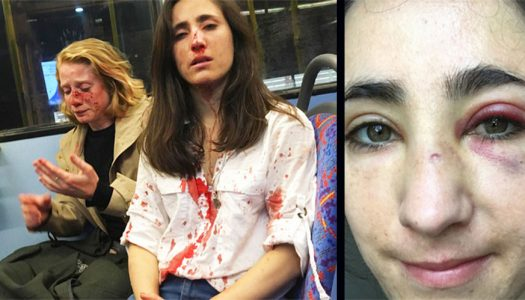 Lesbian couple suffer horrific assault on a London bus